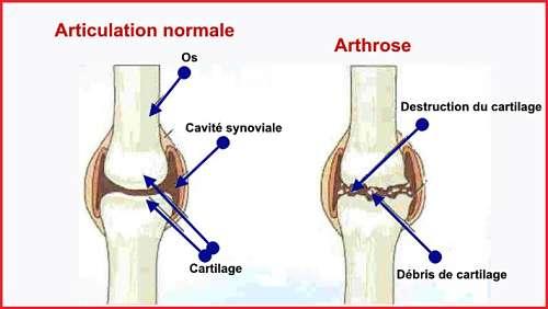 Articulation normale et articulation souffrant d'arthrose