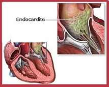Une endocardite bactérienne