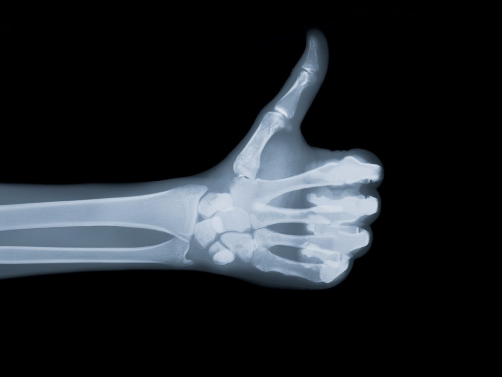 Une radiographie d'une main qui lève le pouce