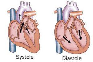 Systole ou Diastole