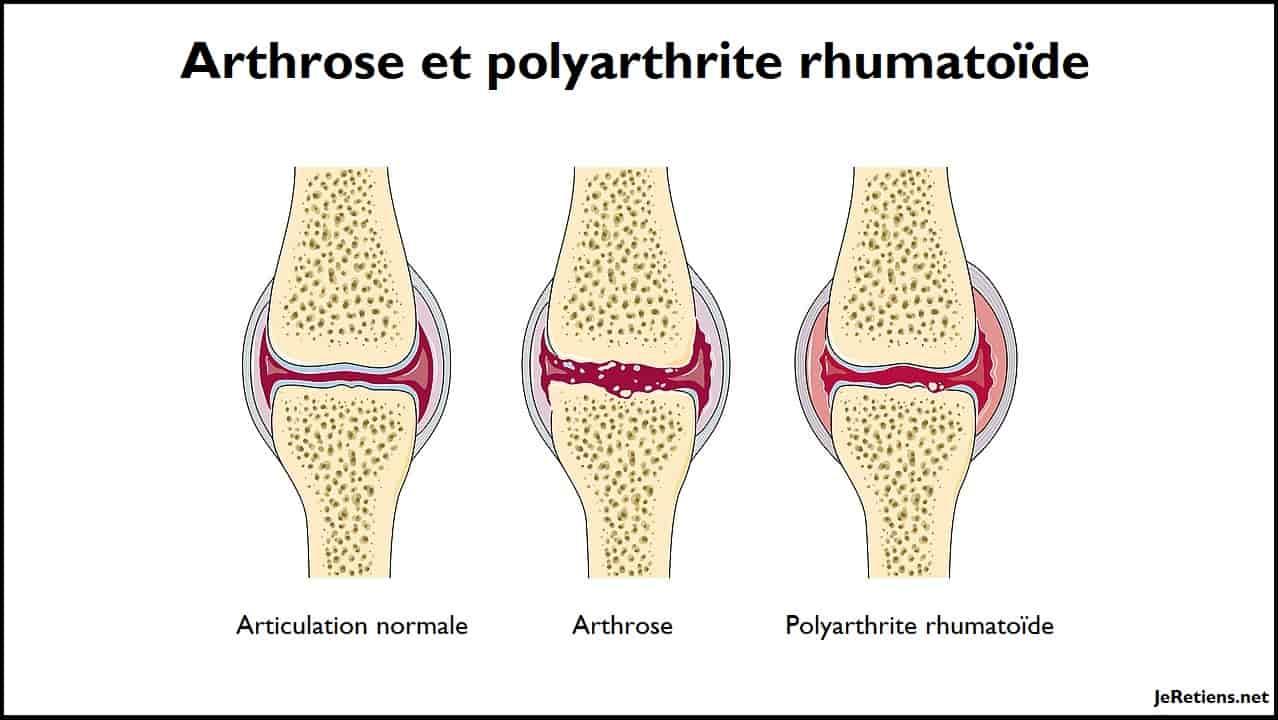 Quelle différence y a-t-il entre l'arthrite et l'arthrose ?